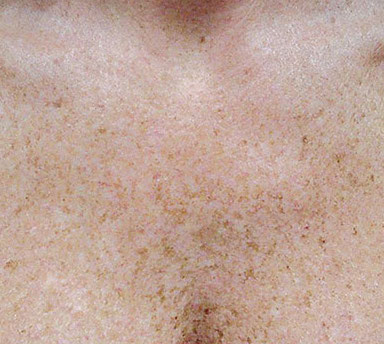 IPL can reduce freckles and tone skin at La Therapie Spa