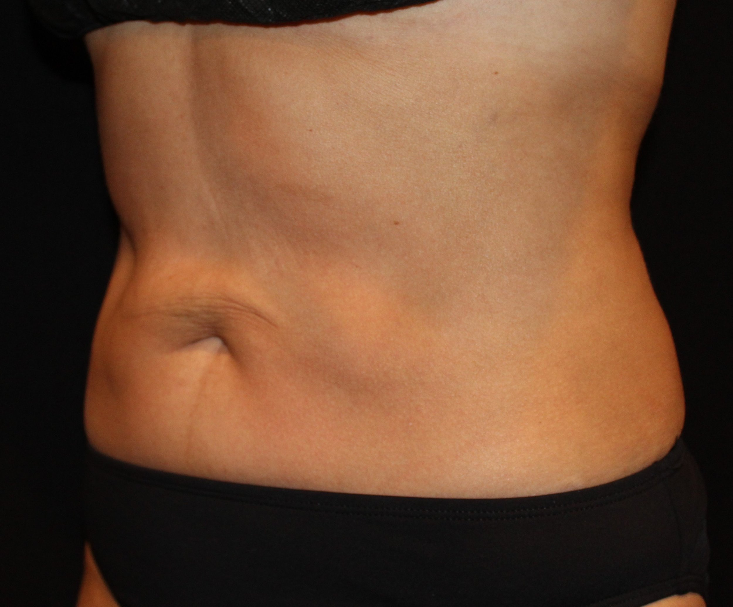 Abs After