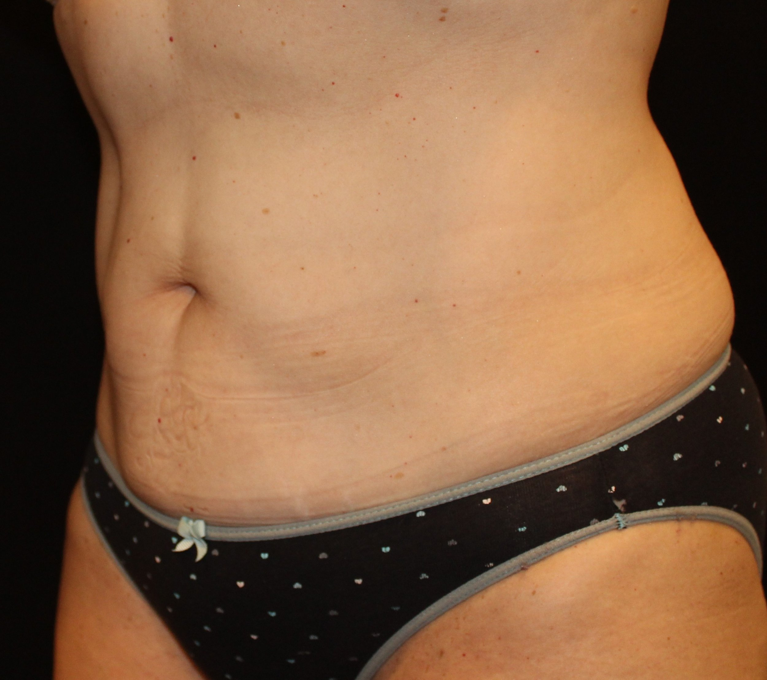Upper/Lower Abs After