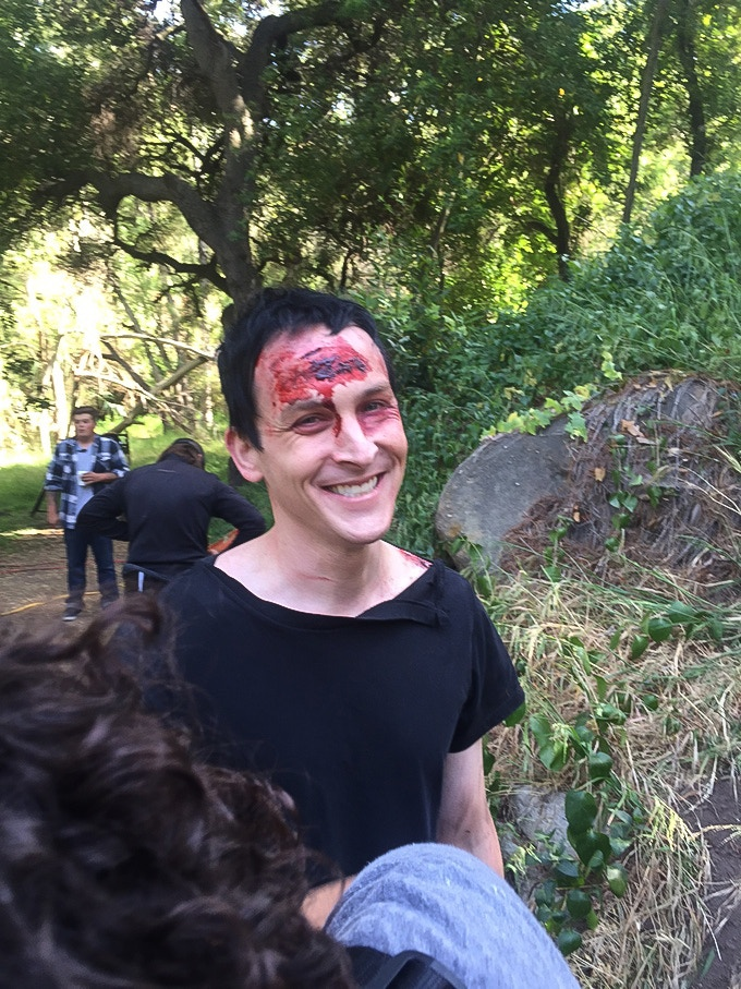 Actor Robin Lord Taylor shows off his wounds.