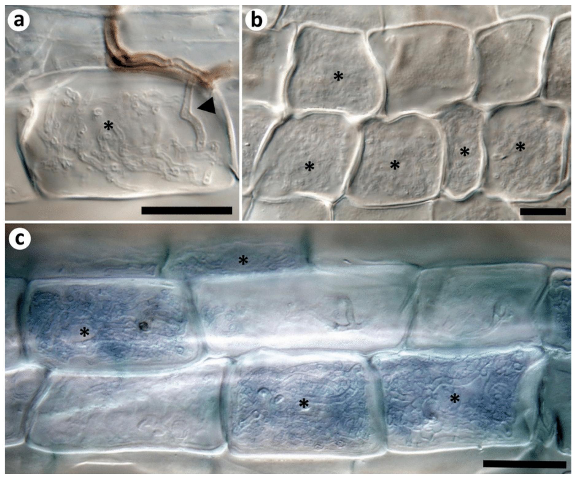 Ericoid mycorrhizae of   Rhizoscyphus ericae .