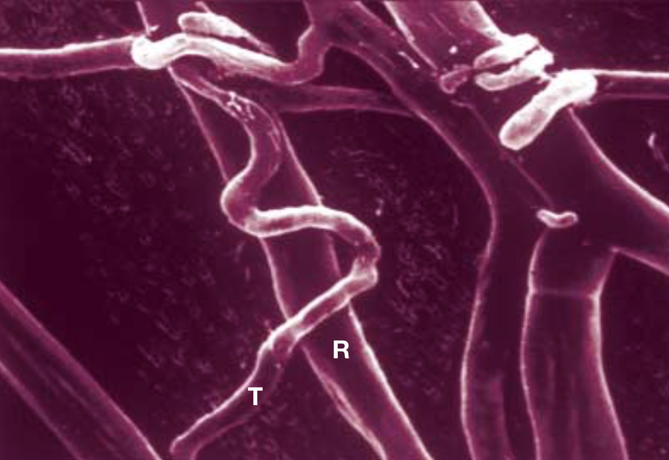 Rhizoctonia solani  (R) being attacked by  Trichoderma  (T).     Harman et al. 2004 .