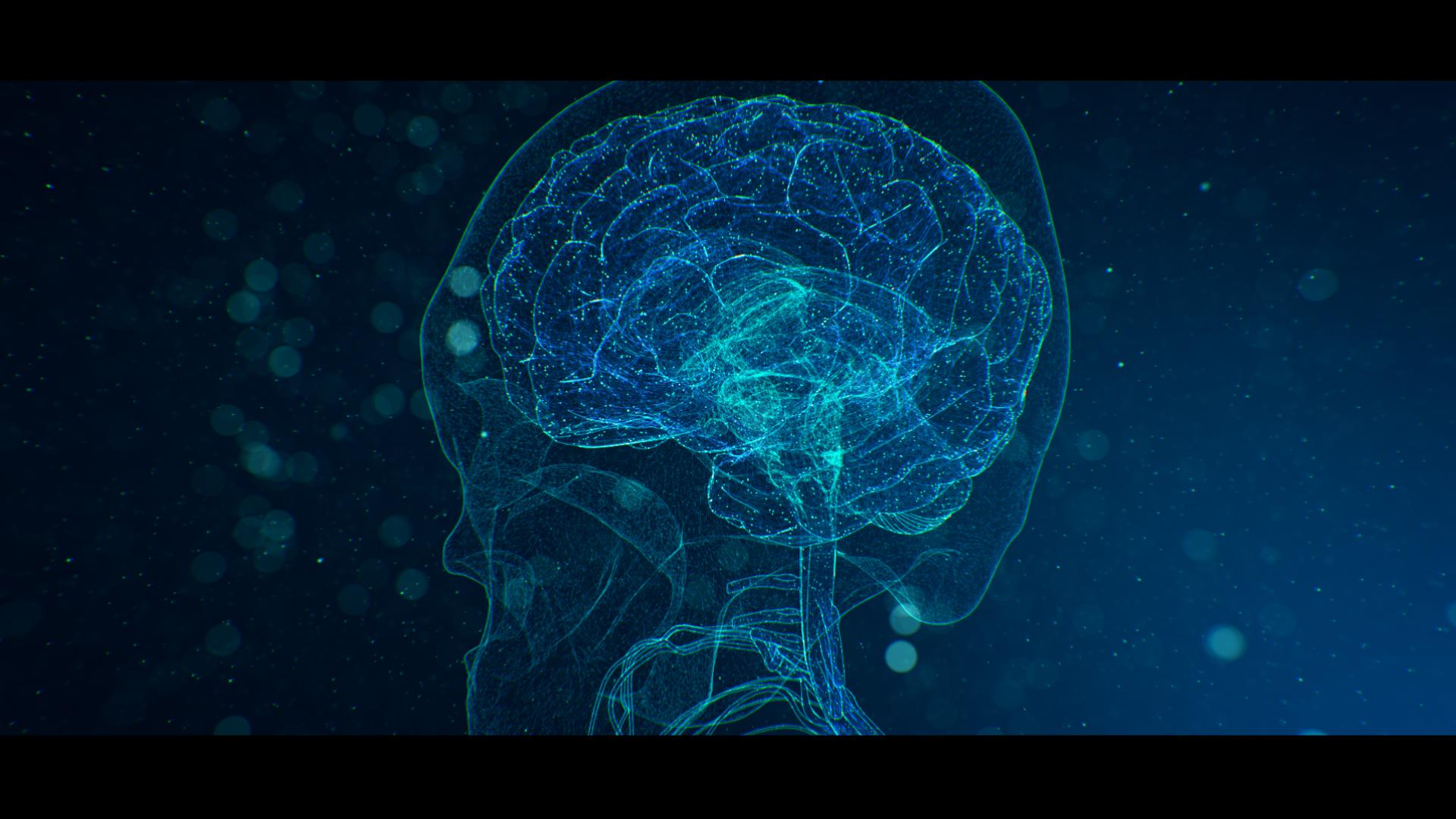171128_brain cam2_v1.jpg