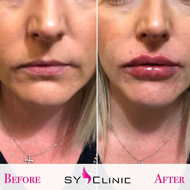The Power of The SY Clinic ❤️💉👄 We Pride ourselves in our work and we enjoy it to the Max ▪️▪️▪️BOOK NOW #aesthetics #sexy #contoured #lips #enhancement #lipfillers #lipenhancement #dermalfillers #kyliejenner #lipbae #syclinic