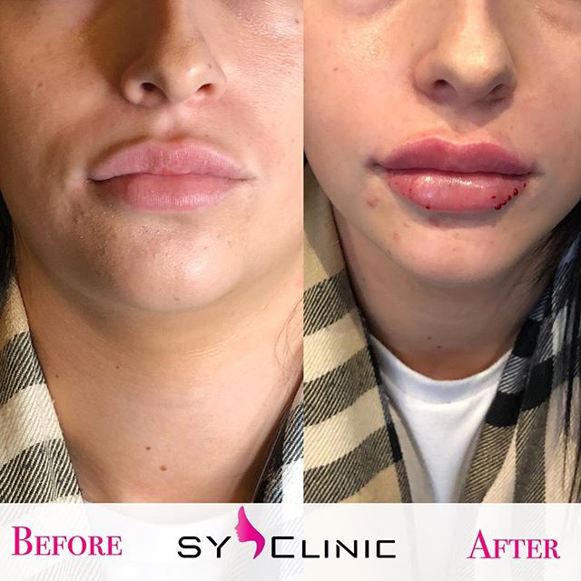 A Beautiful Transformation ❤️👄💉 Who Loves these Lips ? Xx #LIPBAE