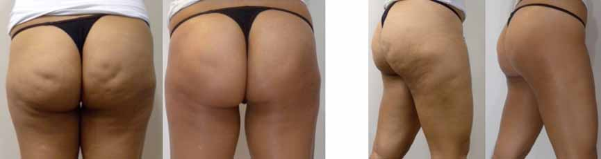 Acoustic+Wave+Therapy+AWT+Before+and+After Cellulite_resized.jpg