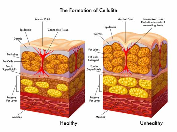 What+is+cellulite+and+how+is+it+formed_resized.jpg