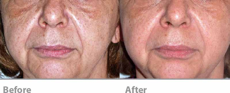Acoustic Wave Therapy (AWT) before and After - Facial line and wrinkles