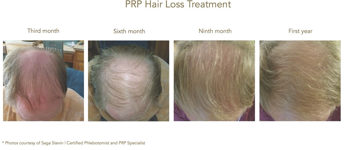 PRP Hairloss Aquagold Finetouch.JPG