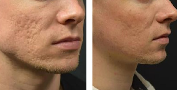 acne-scars-600x306.png