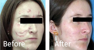 scars-beforeafter2.png