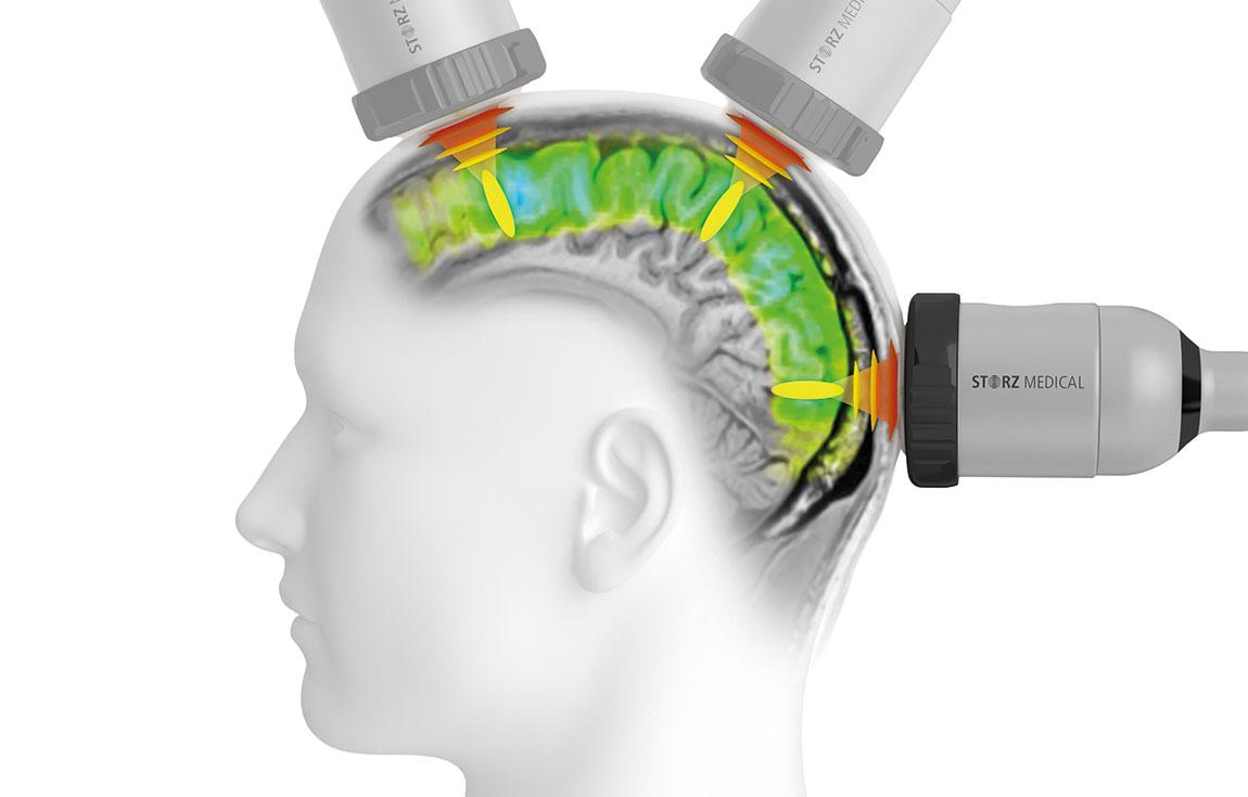 neurolith_Storz_shockwave_Alzheimerjpg