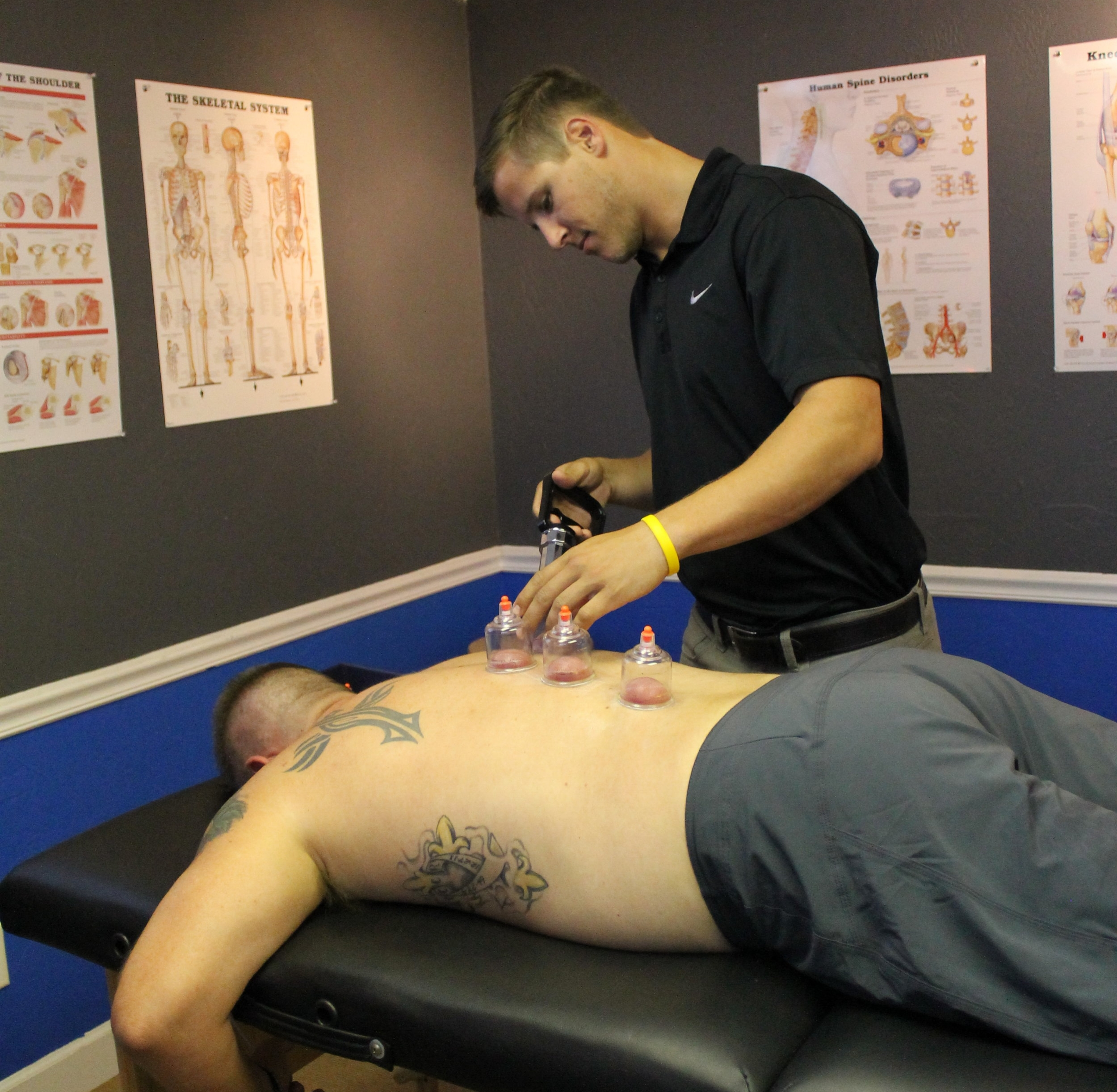 Cupping Therapy   By creating suction, negative pressure, and therapeutic inflammation, Cupping Therapy is used to soften tight muscles and tone attachments, loosen adhesions and lift connective tissue. It also brings hydration and blood flow to body tissues, and drain excess fluids and toxins by opening lymphatic pathways.  Just look at Olympic athletes like Michael Phelps for proof as to why you should try out this therapy!