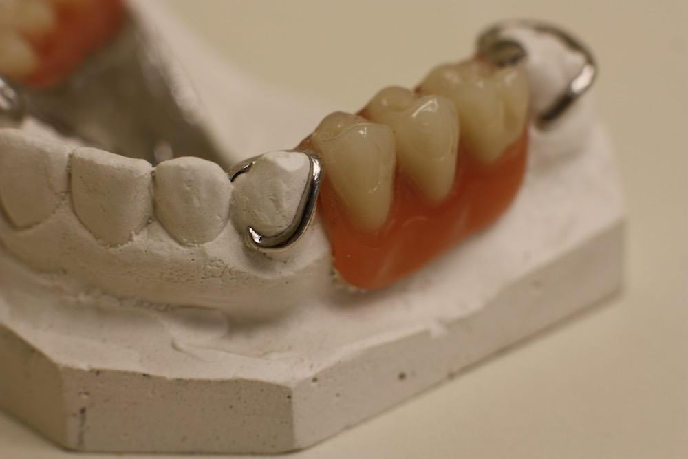 ooltewah-dentures.JPG