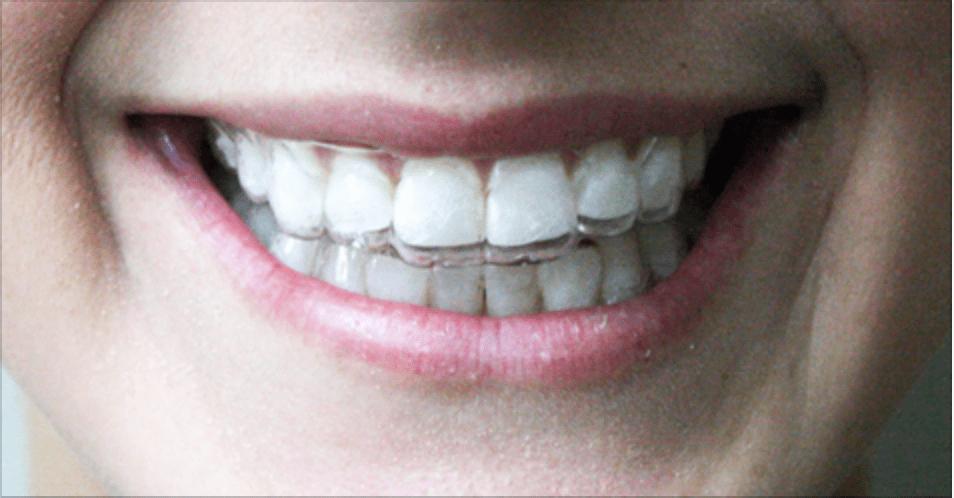 teeth-straightening-ooltewah.png