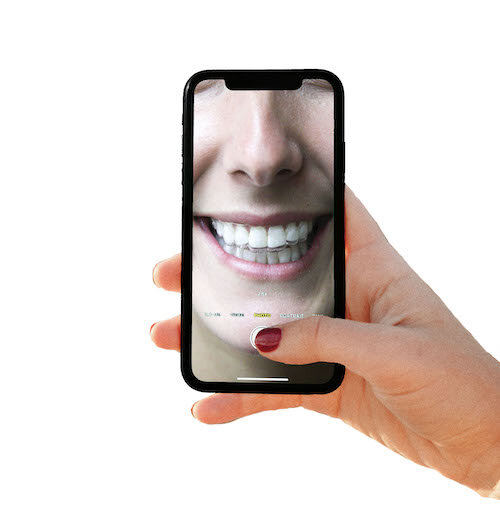 Just Snap a Picture of Your Teeth and Send it via text to    423.713.5555