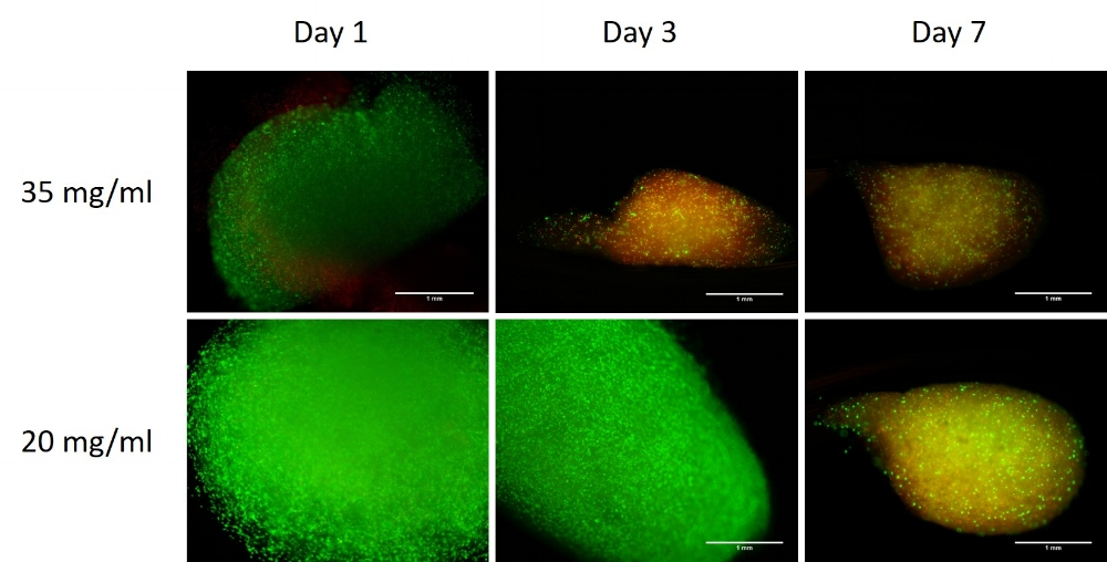 Figure 3: LifeInk200 shows higher viability on Day 7 at concentrations of 20mg/mL (bottom) than at concentrations of 35mg/mL (top). Samples analyzed with Live/Dead Cytotoxicity kit.