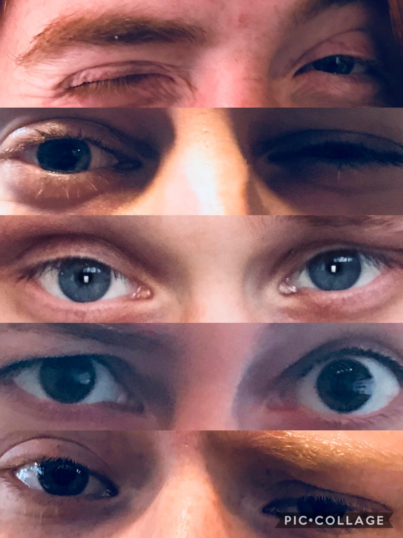 Agrestican Eyes