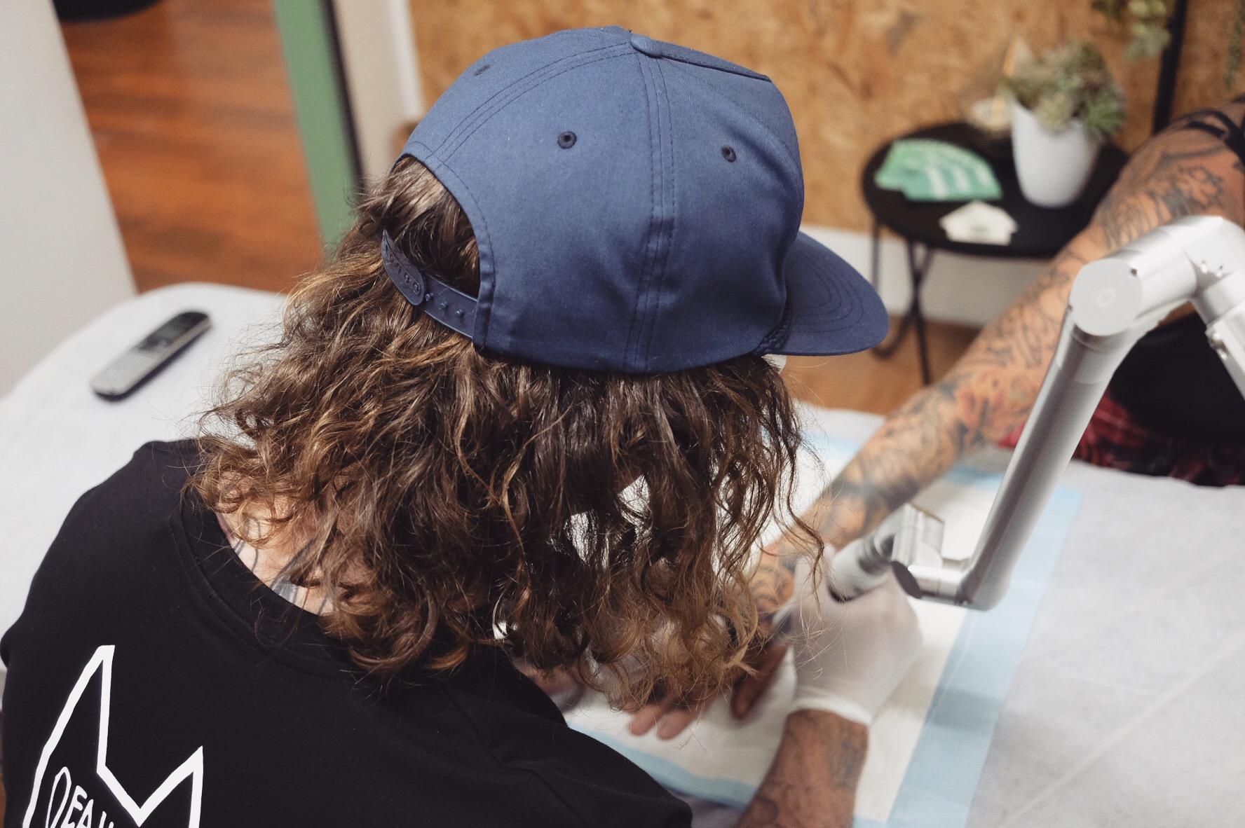 MJ Driver Gold Coast Laser Tattoo Removal