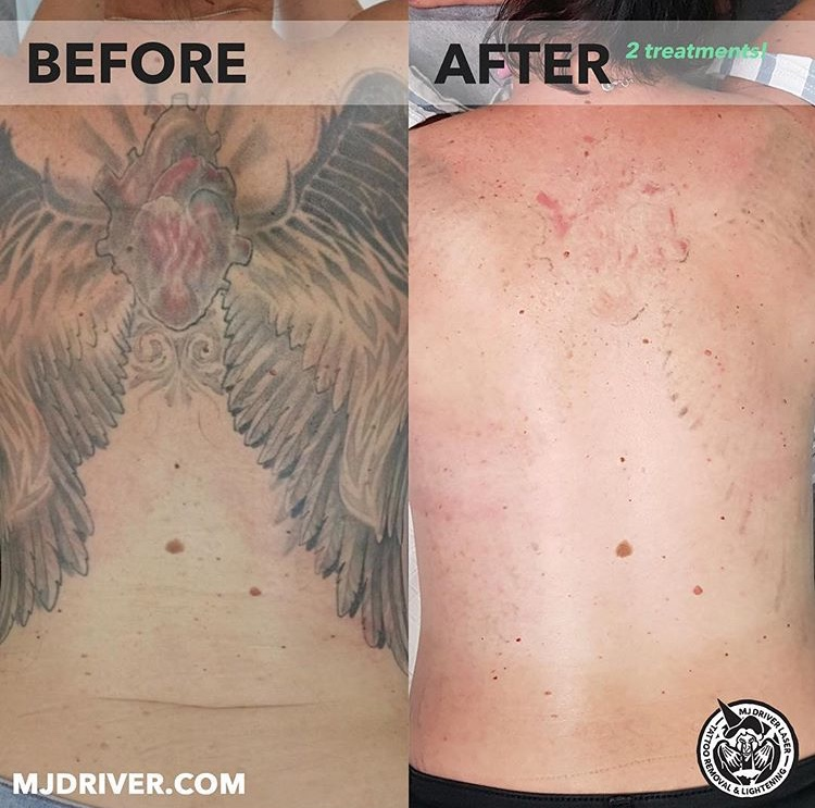 These epic results were achieved after just two sessions at our Brisbane laser tattoo removal clinic! Our client left almost a year between the two treatments and is stoked with how much ink has been removed.