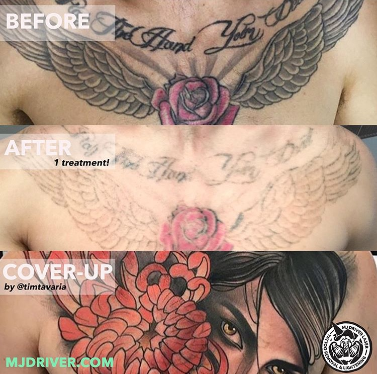 We love a good cover up! This customer received one session of laser tattoo removal at one of our Melbourne clinics and then went over to Tim Tavaria to get something new over the top.