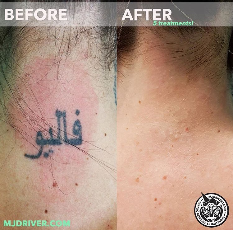 Hasta la vista, neck tattoo! This little one was completely gone after 5 sessions of laser with Jimmy at our Brisbane clinic.