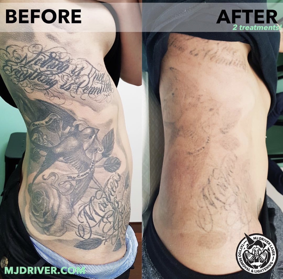 MJ Driver Before and After Laser Tattoo Removal