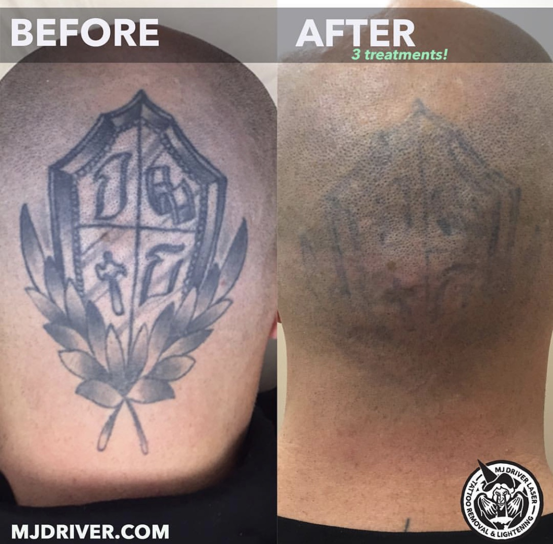 Before and After MJ Driver Laser Tattoo Removal
