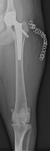 A BFX 'lateral bolt' femoral implant, utilised
