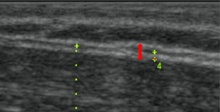 Densification - Red arrow shows separation of deep fascia.