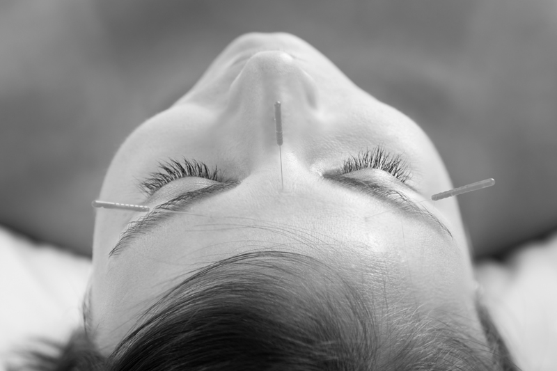Cosmetic acupuncture is the use of very fine acupuncture needles in qi points in the face. The skin and muscles respond with a lifting effect and the skin rejuvinates as the body sends signals to heal the micro punctures.