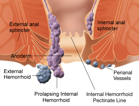 how hemorrhoids are formed