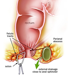 Treating Anal Fistulas Colorectal Surgeons In Tampa Florida Colorectal Clinic Of Tampa Bay