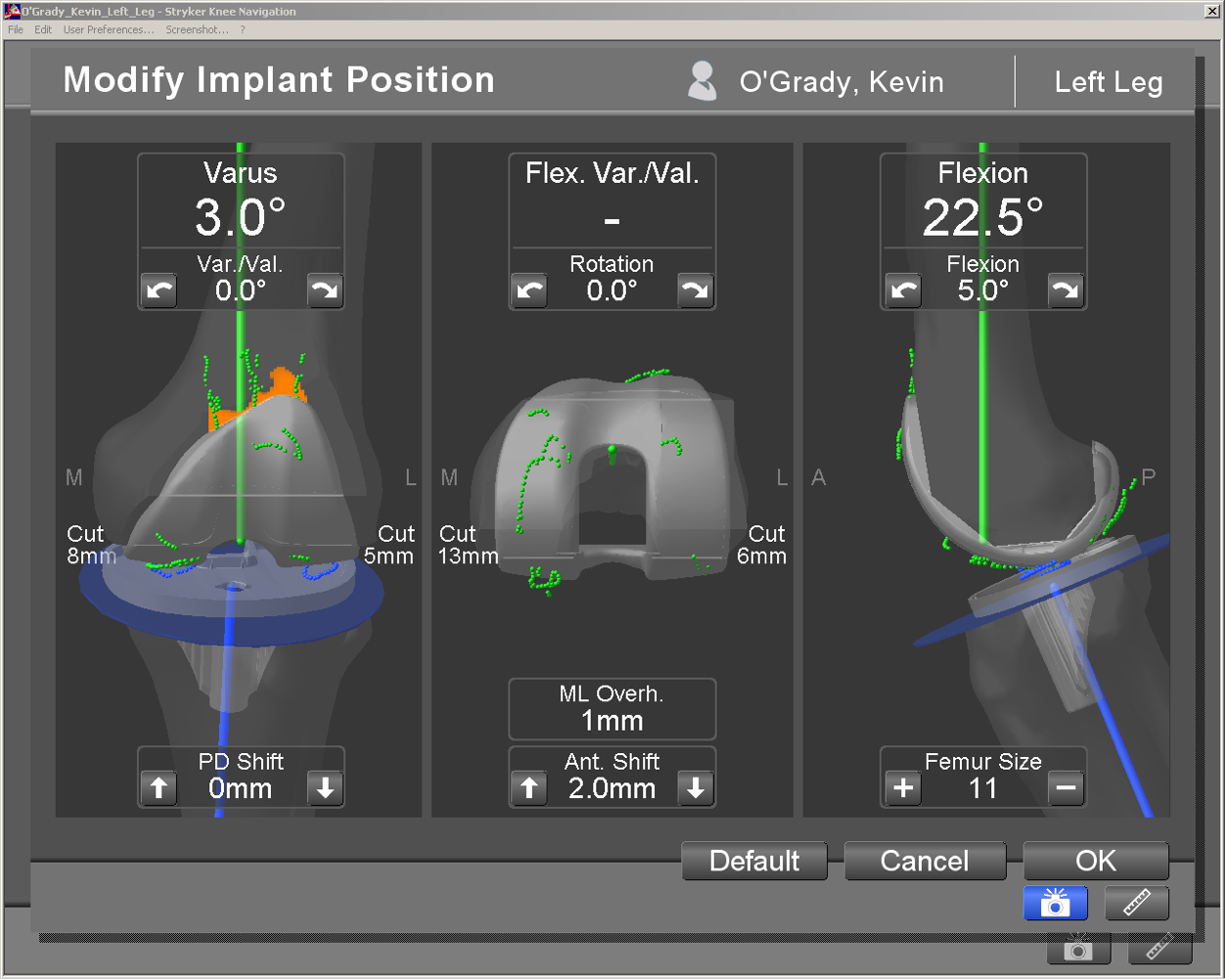 Computer navigation allows knee replacement to be carried out with great precision.