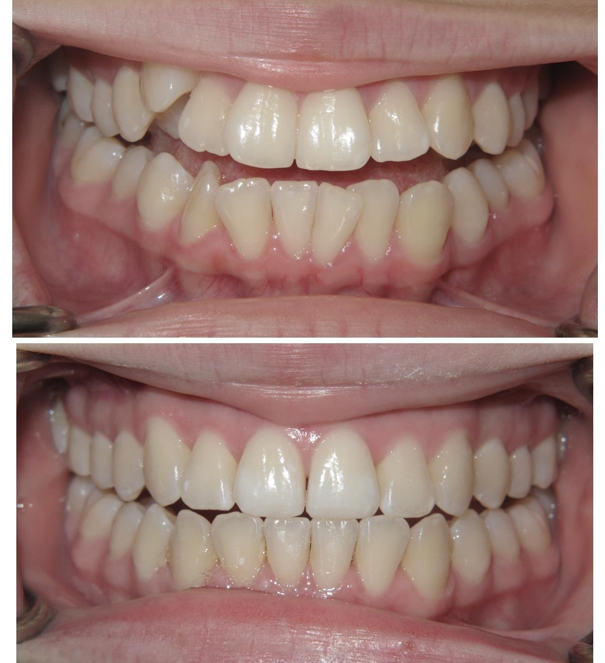 before and after crowded teeth