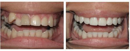 invisalign-1-before-and-after-compressedl1.jpg