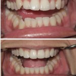 invisalign-before-and-after-compressed2-150x150.jpg