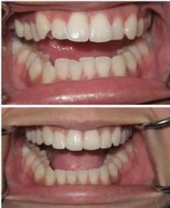 invisalign-before-and-after-compressed2-246x300.jpg