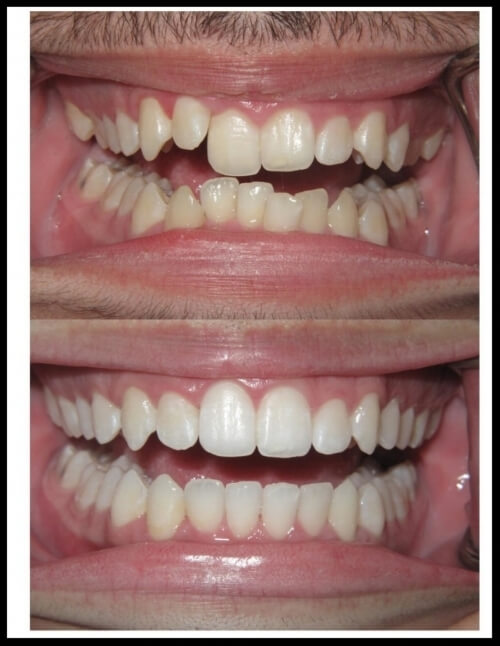 Want a beautiful smile without all the metal hassle? Give us a call today!