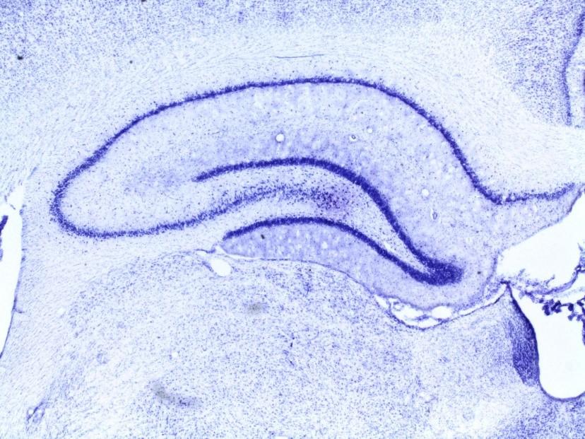 Neurons in rat hippocampus