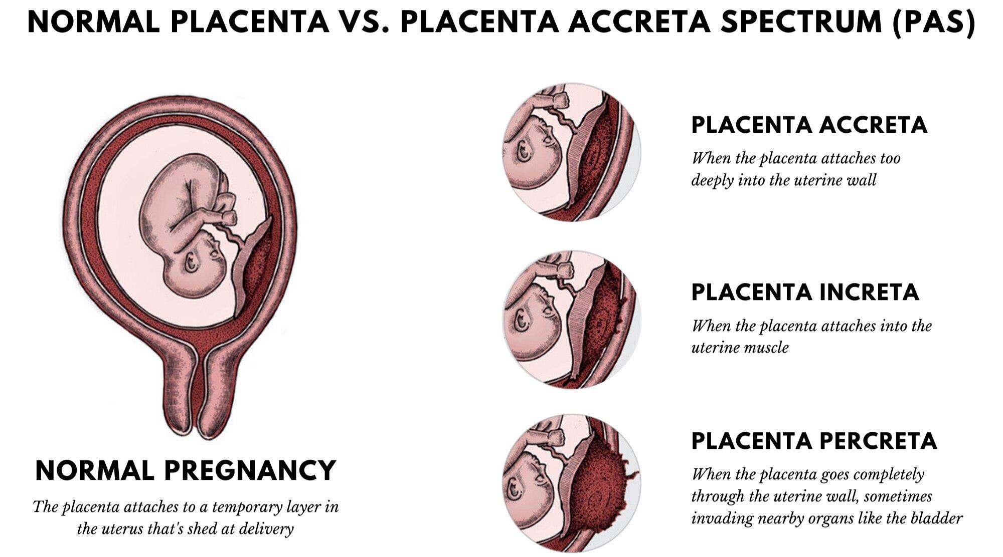 Placenta Accreta Spectrum   Placenta Increta   Placenta Percreta.png