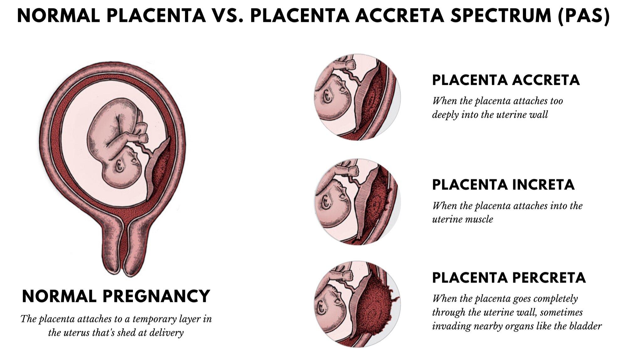 Placenta Accreta Spectrum | Placenta Increta | Placenta Percreta
