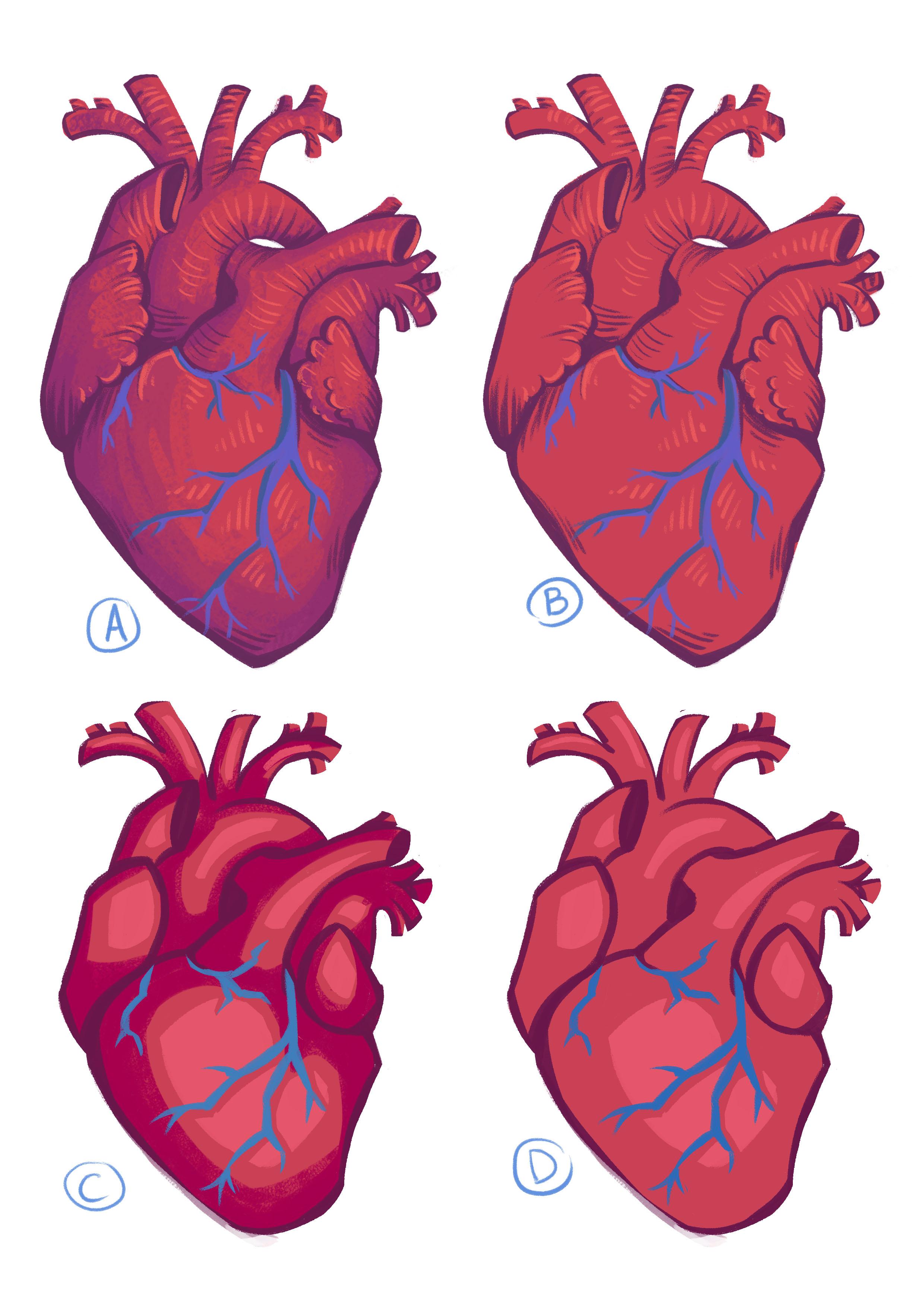 anatomicalheart_sample.jpg