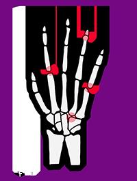 artrosis2.png