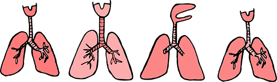 pulmoneschico.png