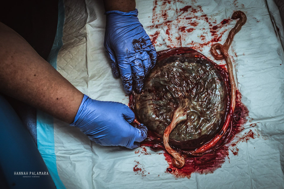 Midwife checking the placenta over after delivery.