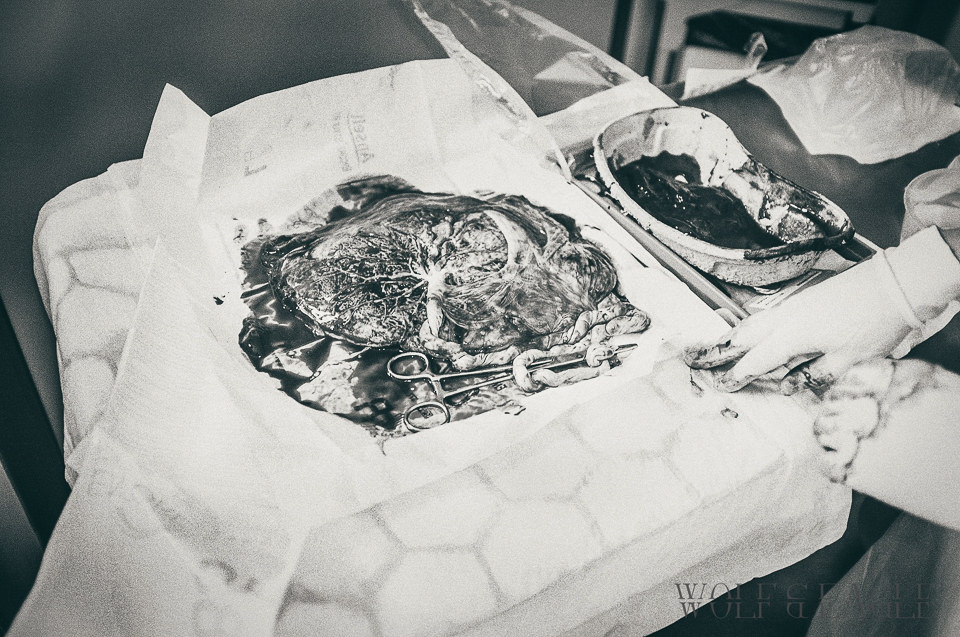 Black and white image of a placenta laid out on a sheet with clamp still on the cord.