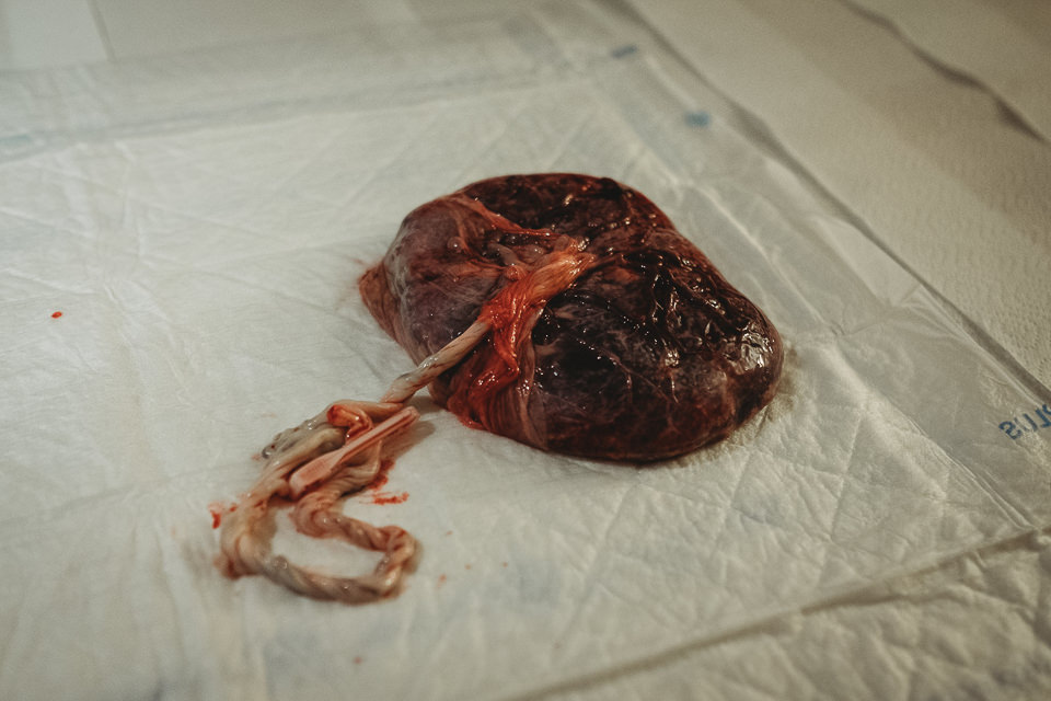 Placenta laid out on a sheet following a hospital birth.