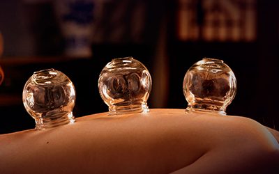 Cupping - Cupping can loosen muscles & encourage blood flow. Cupping is also benifical to relieve back and neck pains, stiff muscles, anxiety, fatigue, migraines, and cellulite.