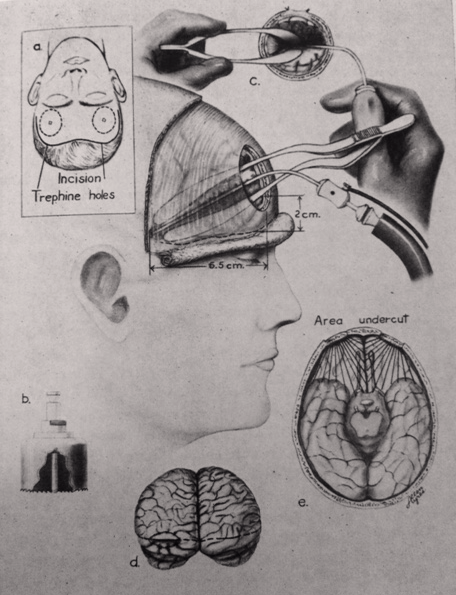 "An illustration of my grandfather's so-called ""orbital undercutting"" approach to the lobotomy"